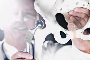 endoproteza stawu biodrowego - metalowa panewka - ortopeda