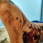 19.12.2020 - stopa i kostka pacjenta P.P.