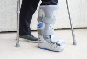 But Walkera - pacjent o kulach, złamanie, uraz stopy