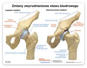 Artroza stawu biodrowego - stopień średni i zaawansowany