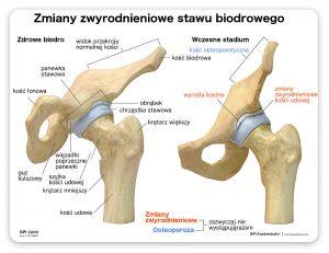 Artroza stawu biodrowego - stadium początkowe oraz zdrowe biodro