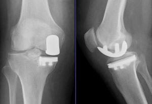 Endoproteza kolana jednoprzedziałowa - zdjęcie RTG