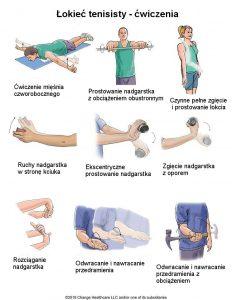 Ćwiczenia rehabilitacyjne na łokieć tenisisty